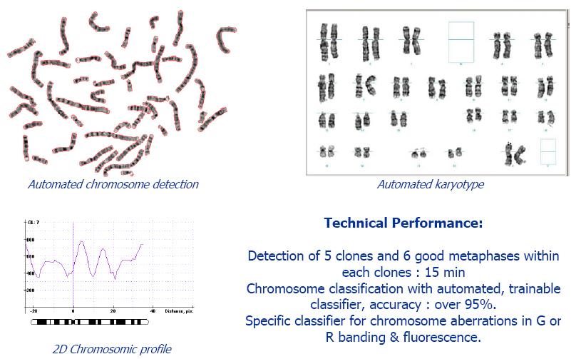 全自动智能染色体核型分析系统