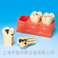 龋齿分解剖模型 KAH/B10009