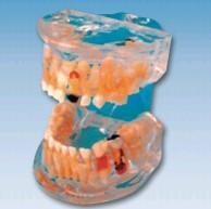 透明乳牙病理模型 SX-609