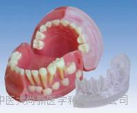 三歲乳恒牙交替解剖模型 SX-621