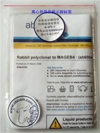 Rabbit polyclonal to Histone H2A + H4 (symmetric di methyl R3) - ChIP Grade ab5823