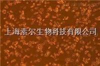 HEC-1-B細胞,人子宮內膜癌細胞