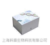人转移生长因子β1(TGF-b1)ELISA试剂盒说明书 免费技术支持